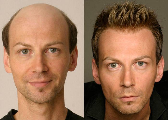 protez saç oncesi ve sonrası