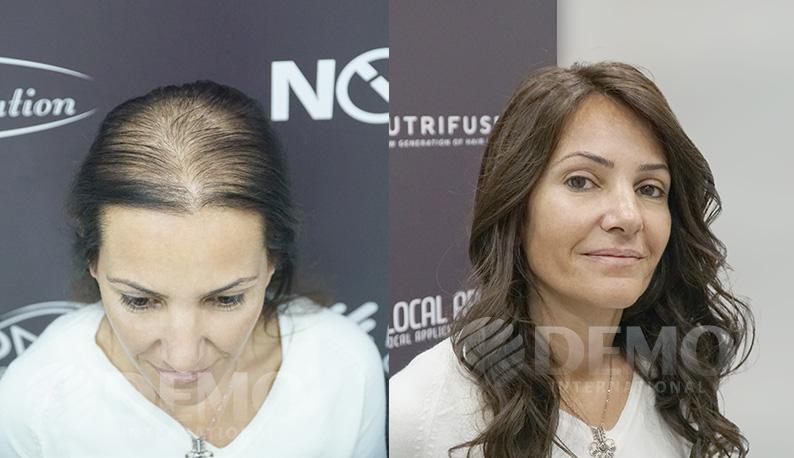 bayan protez saç