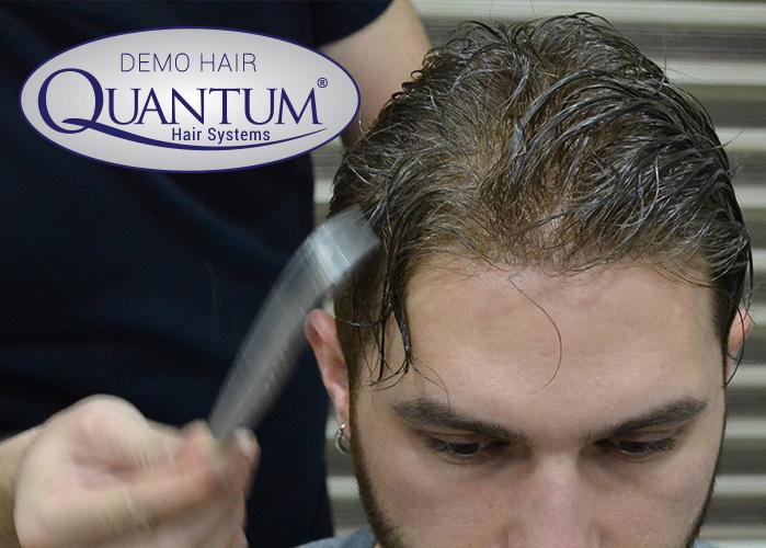 Doğal görünümlü quantum sistem kaliteli protez saç